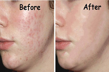 IPLwith laser resurFX before and after