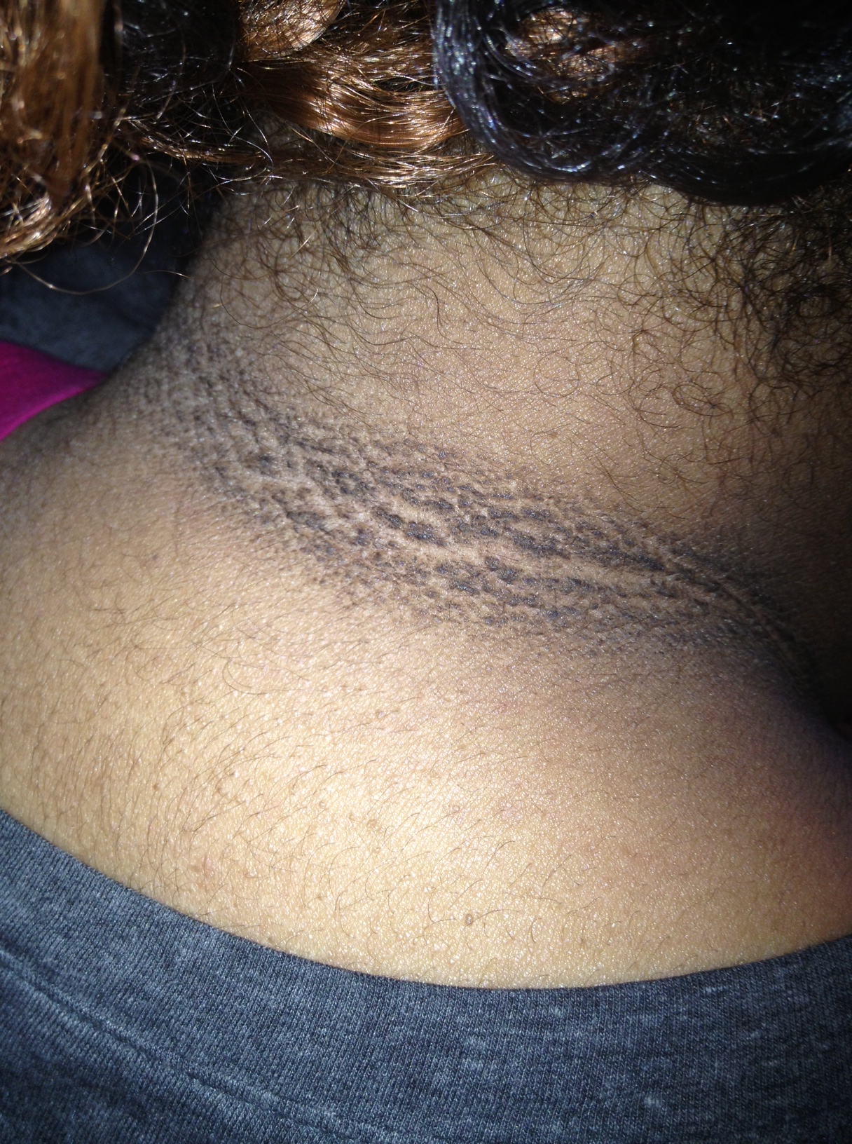Acanthosis nigricans of the neck